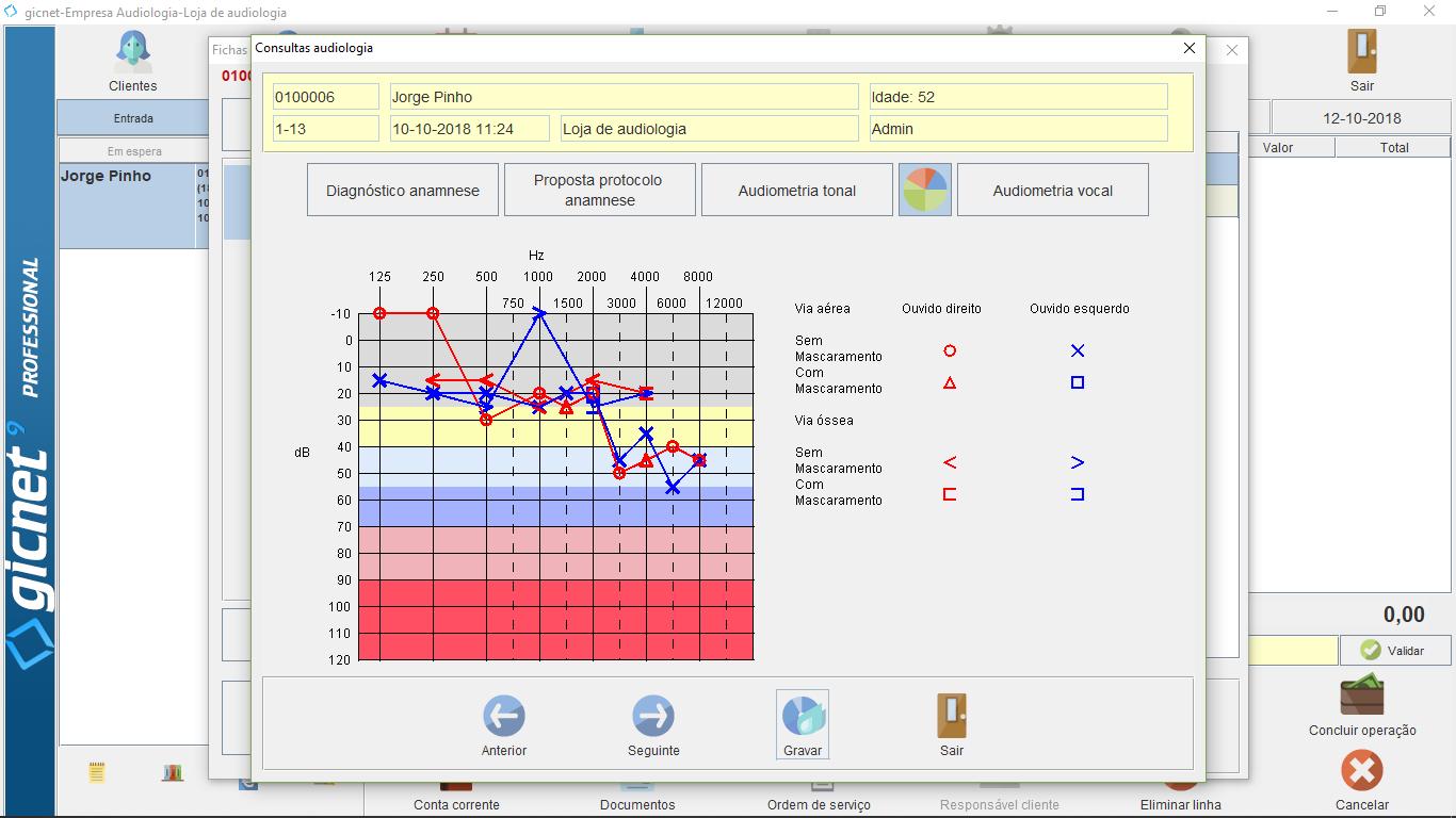 Gráfico Audiometria Tonal